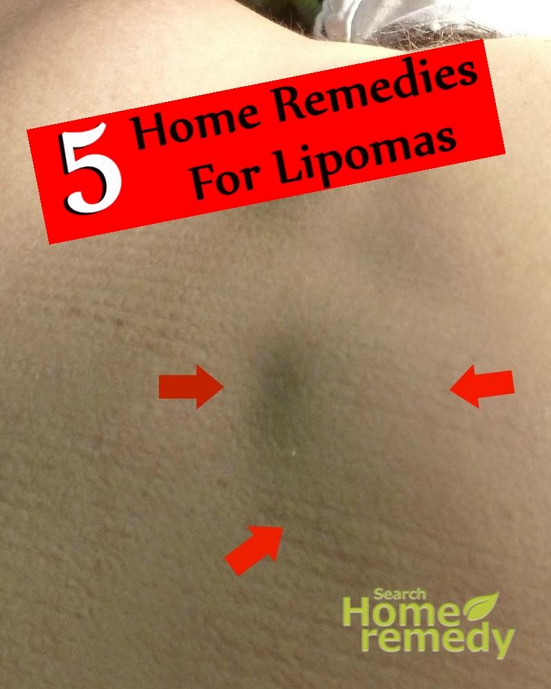 Remedies For Lipomas
