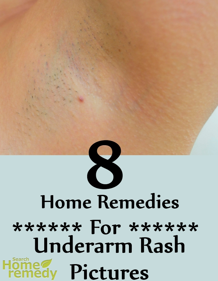 Underarm Rash Pictures