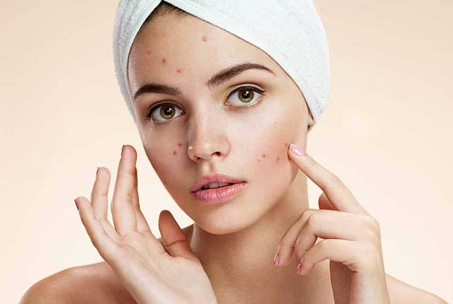 Use it Against Acne