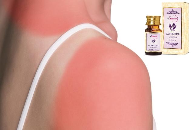 Heals sunburn