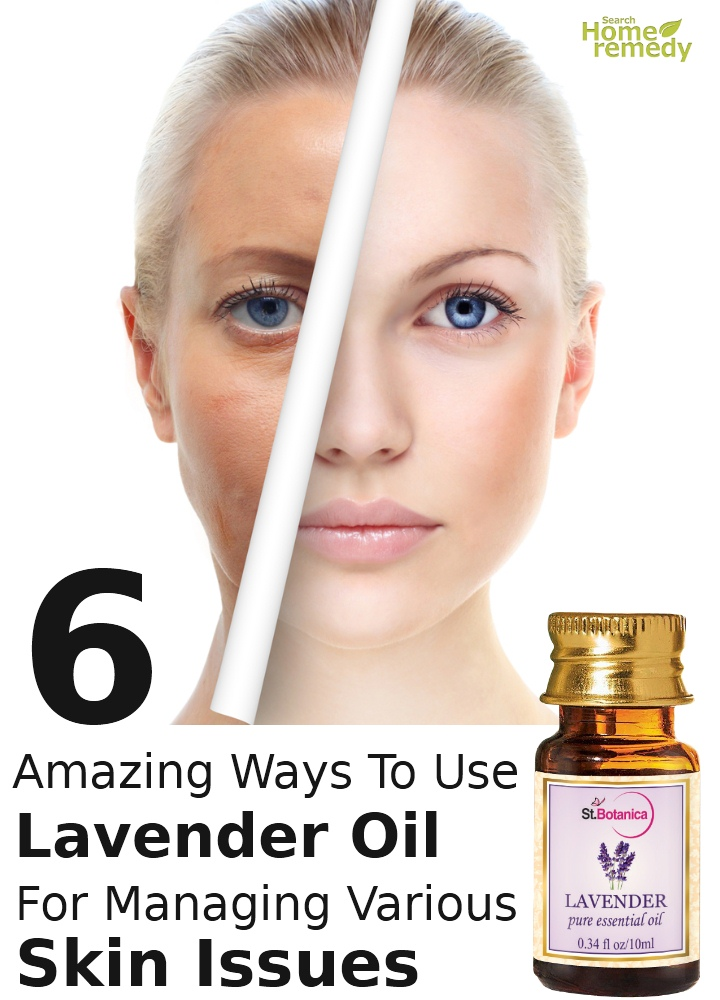 Ways To Use Lavender Oil For Managing Various Skin Issues