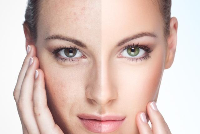 Heals Sun Damaged Skin