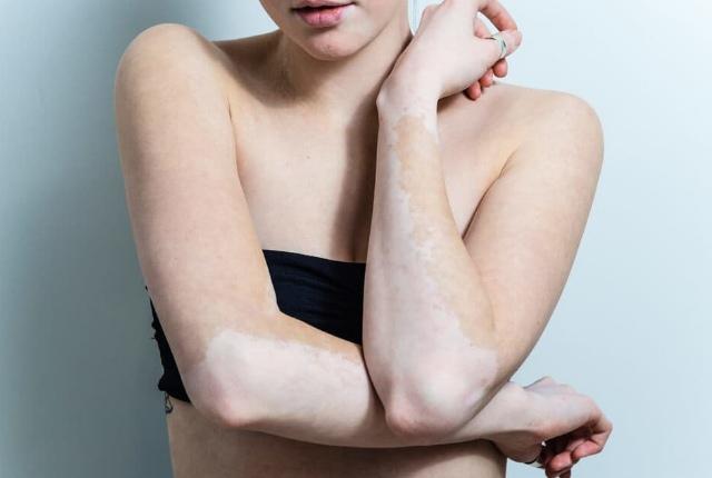 Reduces The Chance Of Vitiligo