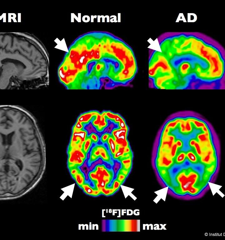 Alzheimer's Disease Update: Gloomy