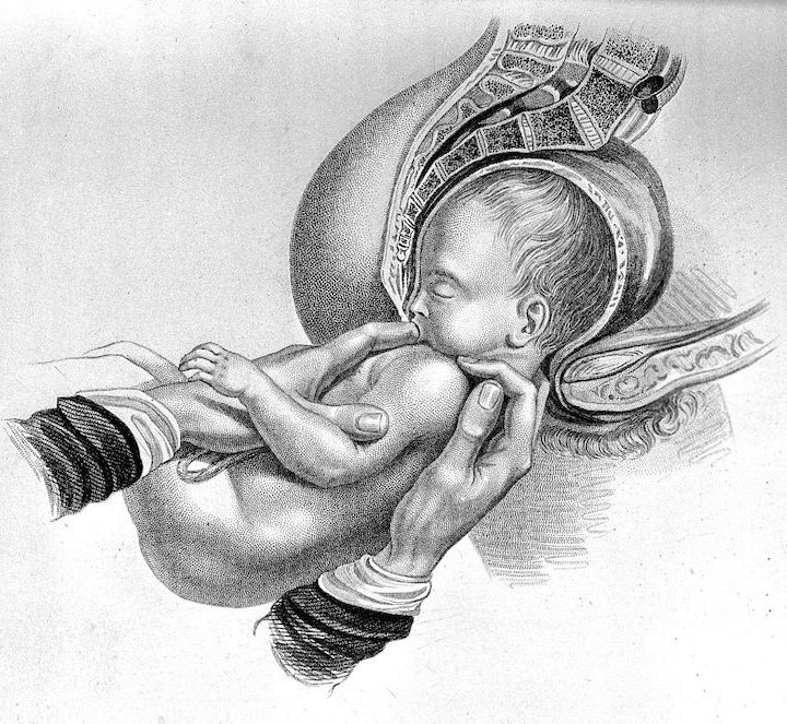 The Dangerous Allure of Breech Birth at Home – and a Problematic New Paper