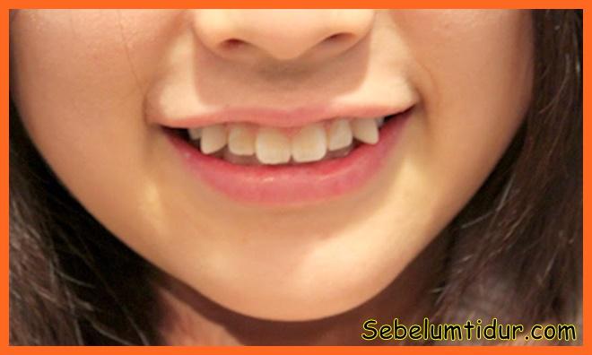 3 Ramuan Jitu Cara Merapikan Gigi Yang Renggang Gingsul Tonggos