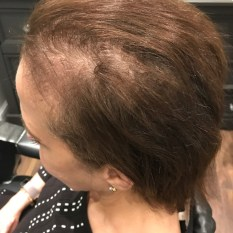 Custom Hair Loss Replacement Integration System
