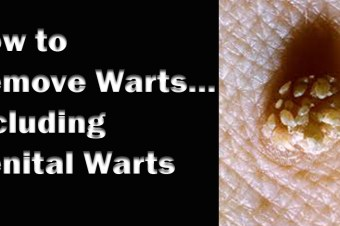 How to Remove Warts… Including genital warts