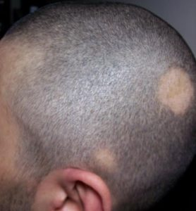 """Contro l'alopecia, """"cura del vampiro"""""""