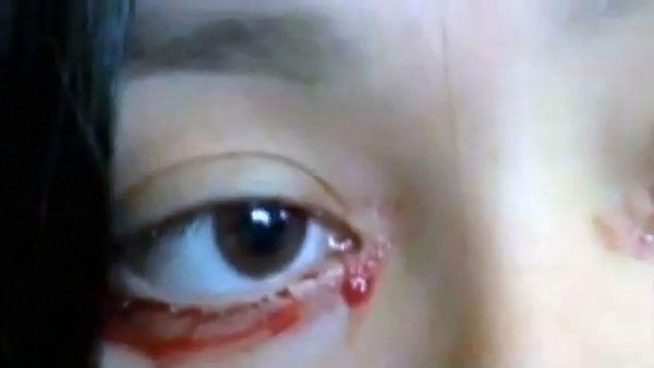 Il mistero della ragazza che piange lacrime di sangue