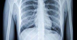 Todo lo que deben saber los pacientes sobre los rayos X
