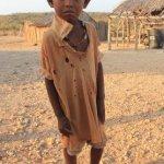 Desnutrición infantil azota al país