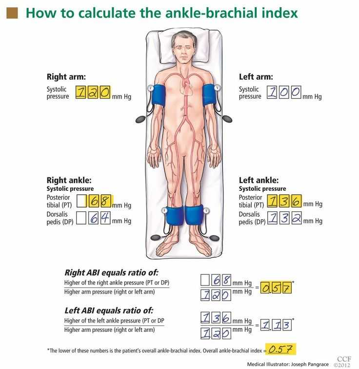 Ankle Brachial Index Worksheet Along with 171 Best Us Arteries Images On Pinterest