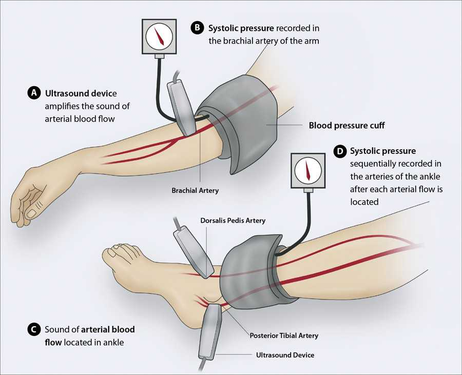 Ankle Brachial Index Worksheet and Development Of An Electromagnetic Induction Method for Non Invasive