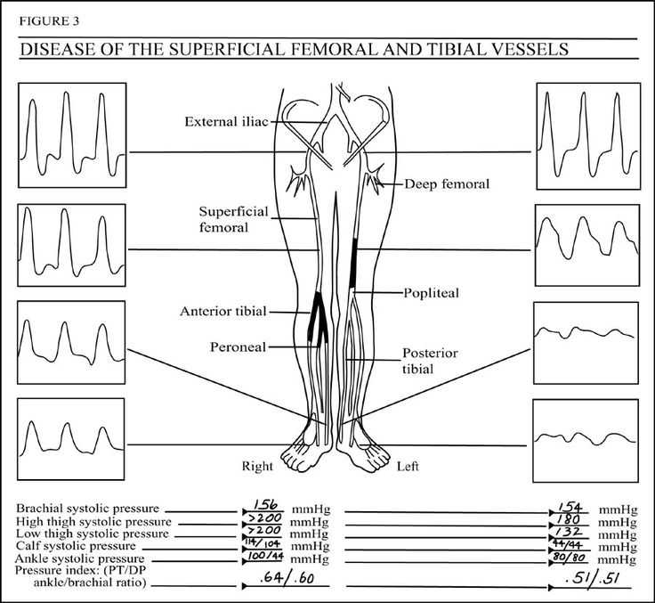 Ankle Brachial Index Worksheet with 171 Best Us Arteries Images On Pinterest