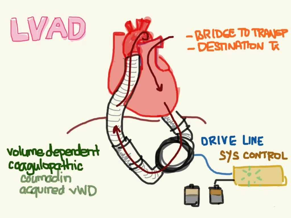 Anatomy and Physiology Worksheets Also Lvad Emergency Care Bing Images