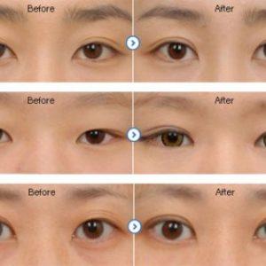semestafakta-korean Eyelid surgery