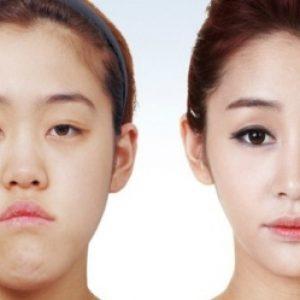 semestafakta-korean Eyelid surgery3