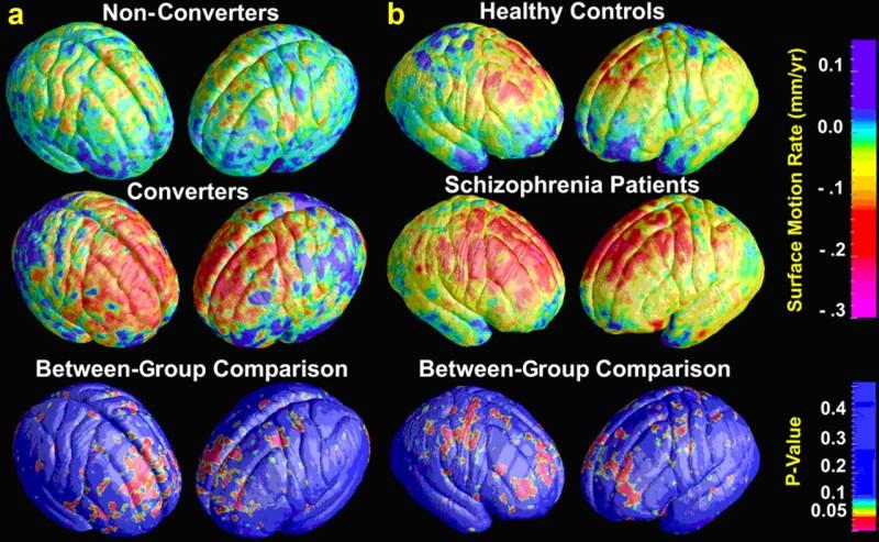mri brain2
