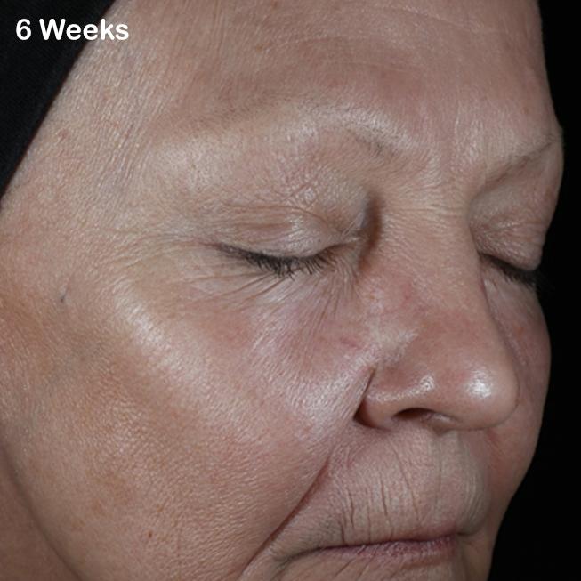 hyperpigmentation after