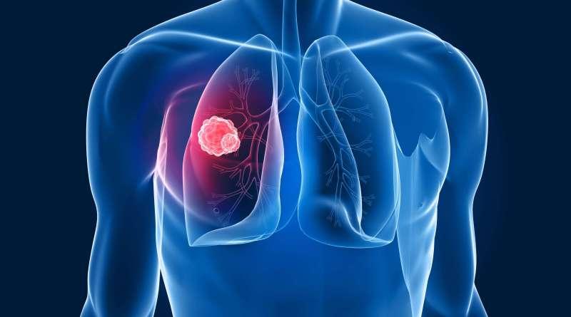 Tumore del polmone: i due volti della proteina hMENA, uno favorisce, l'altro inibisce la progressione del tumore. Su Oncogene i risultati di uno studio sostenuto da AIRC.Tumore del polmone: i due volti della proteina hMENA, uno favorisce, l'altro inibisce la progressione del tumore. Su Oncogene i risultati di uno studio sostenuto da AIRC.