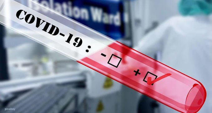 I pazienti COVID 19 positivi sono in totale 99, numero inalterato rispetto a ieri. Di questi, 17 pazienti necessitano di supporto respiratorio.