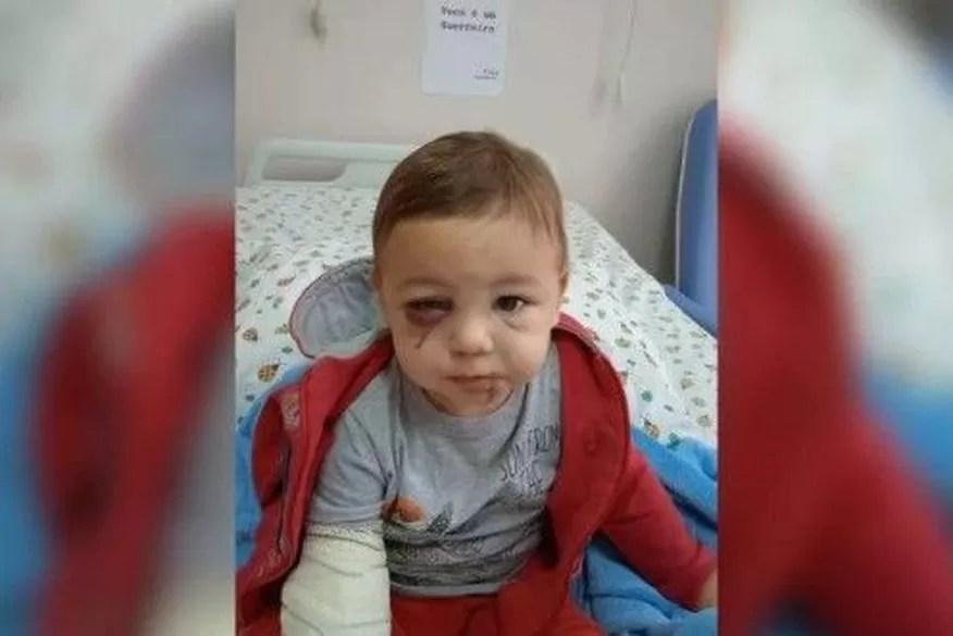 """Bebê que sobreviveu a ataque em SC se recupera: """"Você é um guerreiro"""""""