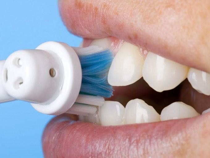 Selalu bersihkan gigi untuk awet muda