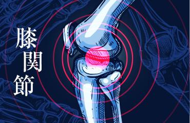 人工膝関節置換術と深部静脈血栓症