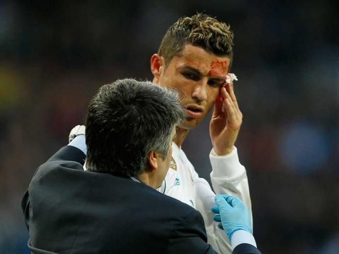 Cristiano Ronaldo salió cortado del rostro ante La Coruña