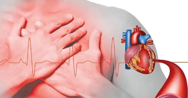 sintomas-de-cardiopatia-isquemica