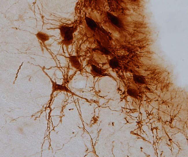 Neuronas-del-Locus-Coeruleus