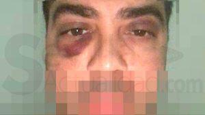 Aspecto que presentaba el alcalareño Antonio J.L. tras ser agredido por quince personas / SA