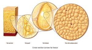 About Vaser Liposuction | SF Medica