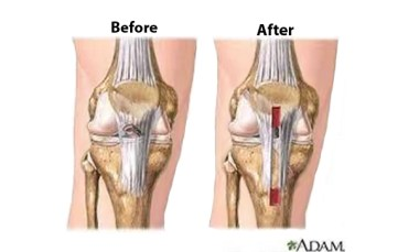ACL-Before-and-After