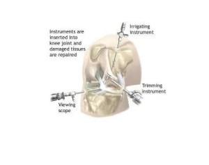Knee-Arthroscopy-(One)