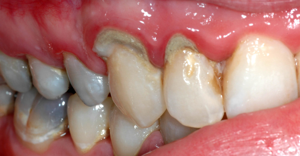 Take Care Of Your Teeth And Prevent Oral Health Problems