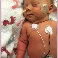 The NICU stay and Preemie Monday
