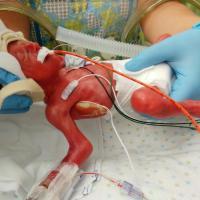 Micro Preemie Adoption: Brody's Story