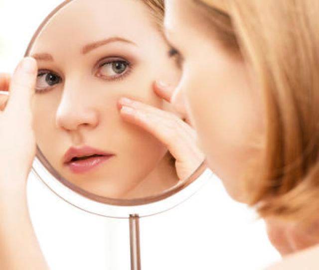 How To Get Rid Of Acne With Face Mapping