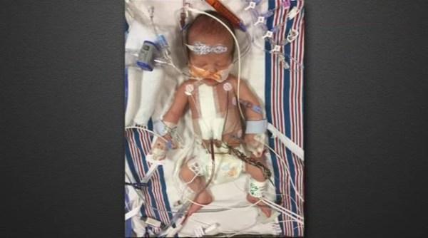 Jimmy Kimmel: Το σπάνιο καρδιακό νόσημα του νεογέννητου γιου του και τι αποκάλυψε ο ίδιος