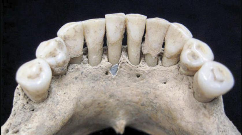 أسنان امرأة من العصور الوسطى دليل على دور النساء الفعال قي تلك الحقبة