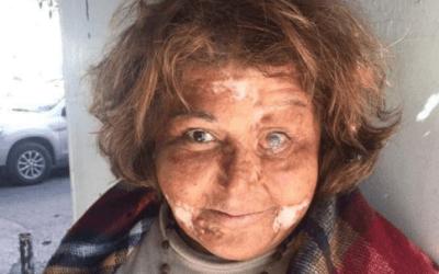 """بماء النار حرق زوجها وجهها وهي حامل… اللبنانية """"سيّدة"""" تروي تفاصيل معاناتها"""