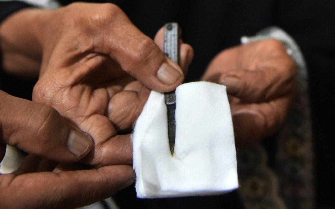 لا للتقاعس الدولي في القضاء على ظاهرة ختان الإناث
