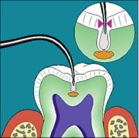 detecting dental caries early with laser tool