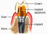 dental implant, abutment and crown illustration