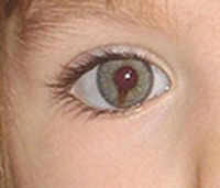 McCann eye