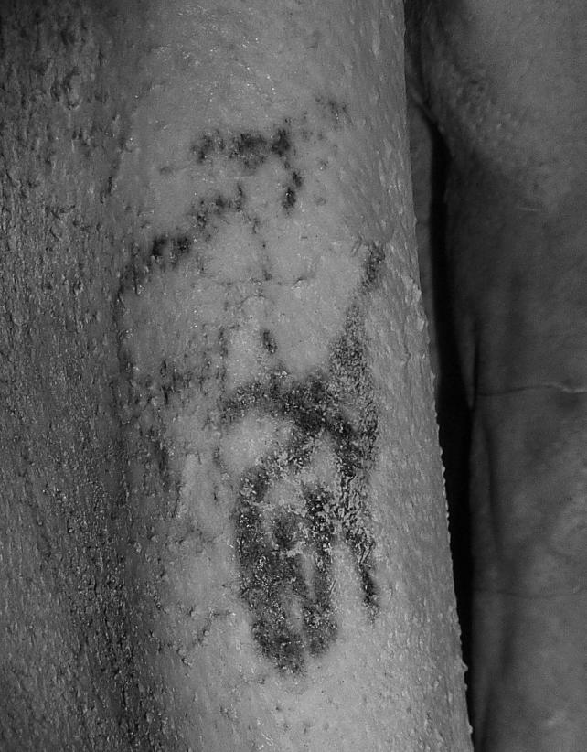 Images shows an ancient animal tattoo found on a mummy in Egypt, showing a bull and a Barbary sheep