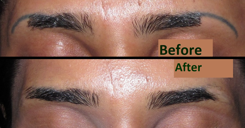 Laser tattoo removal bolton shattered ink bolton lancashire for Eyebrows tattoo removal laser