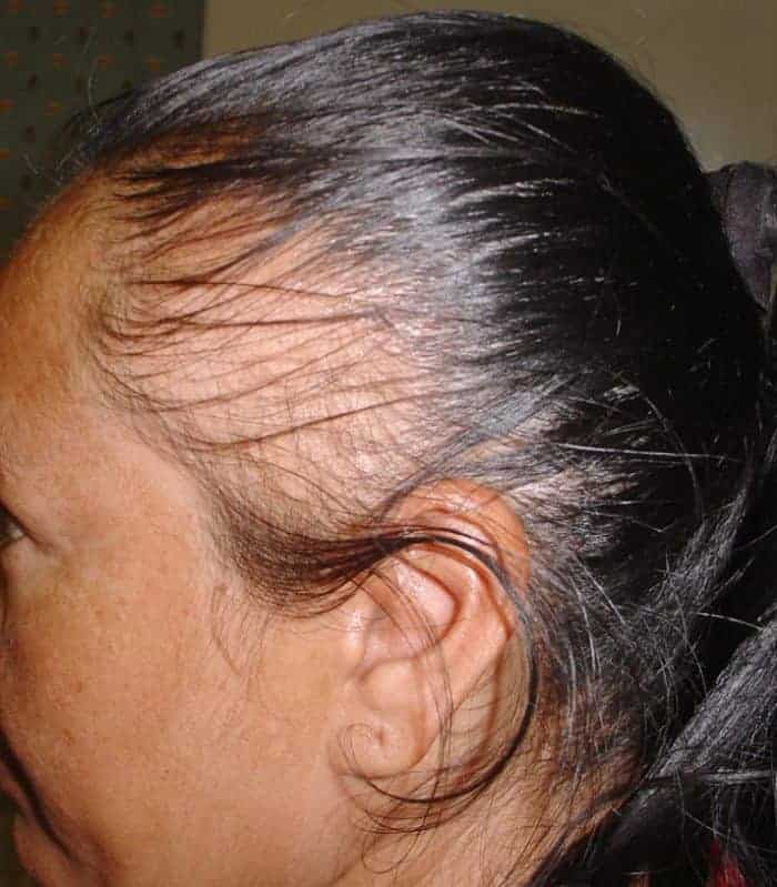 5 Best Scarring Alopecia Natural Treatment SheIdeas